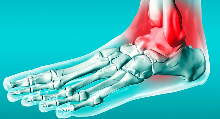 Голеностопный сустав: анатомия сустава человека, строение, мышцы и кости голеностопа