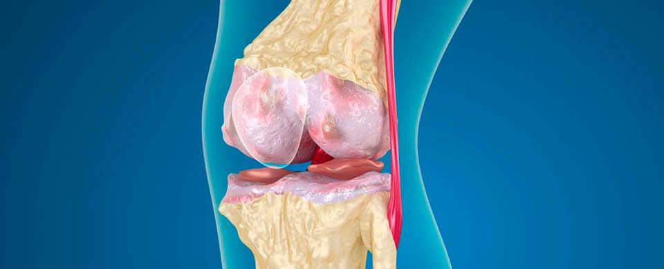 Новообразования зоны коленного сустава