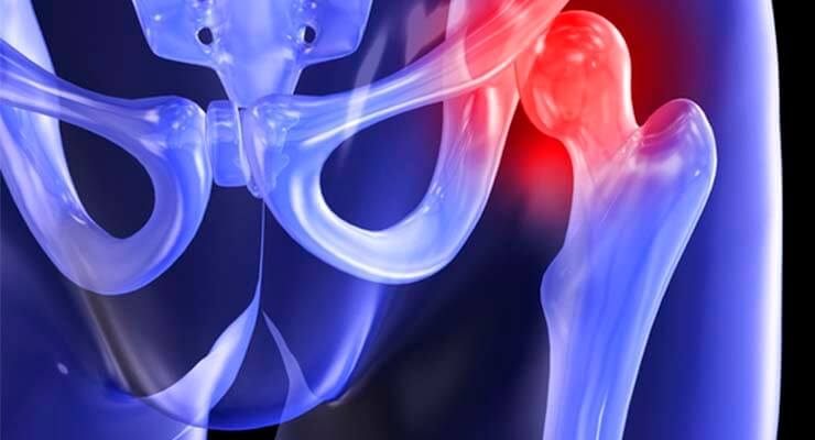Коксартроз тазобедренного сустава причины возникновения