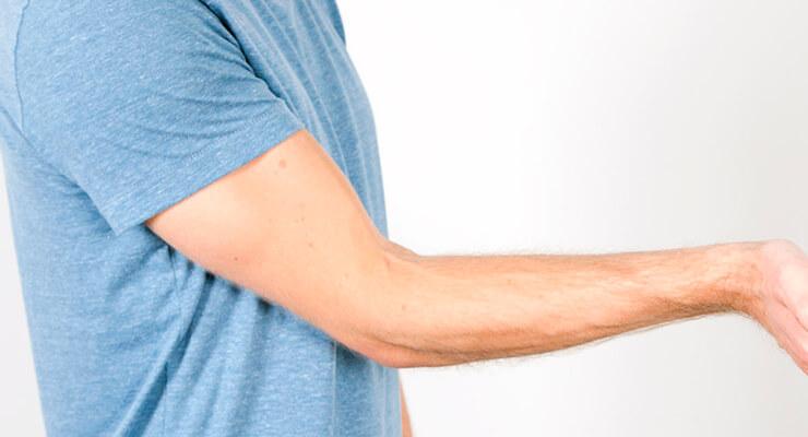 Эпикондилит локтевого сустава - симптомы и лечение, описание заболевания и его виды
