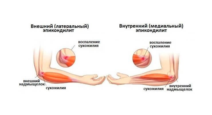Виды эпикондилита локтевого сустава