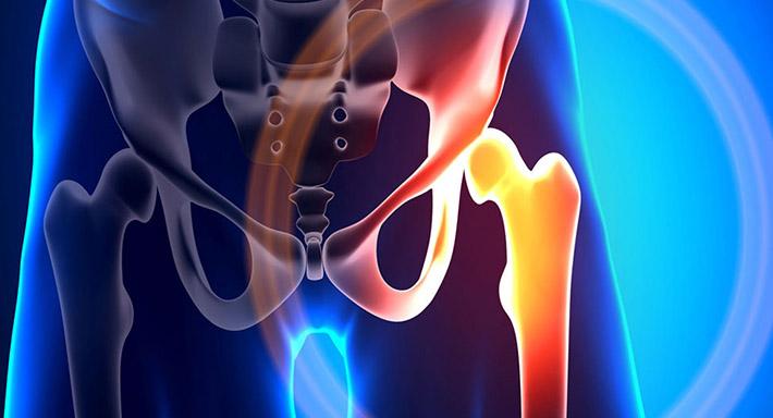 Боль в области тазобедренного сустава и икрой