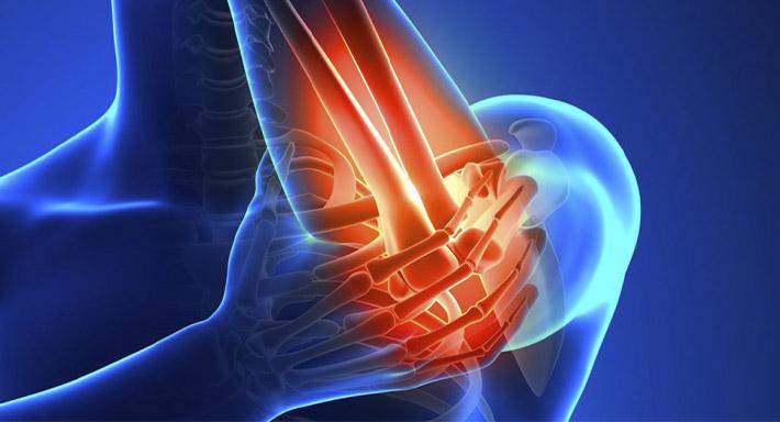 Профилактика и лечение артроза локтевого сустава