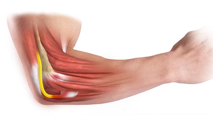 Воспаление плечевого локтевого сустава thumbnail