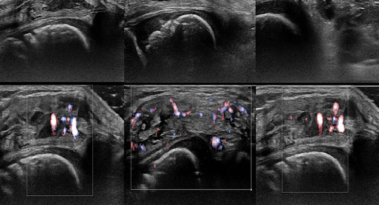 Какие заболевания колена можно определить с помощью УЗИ?