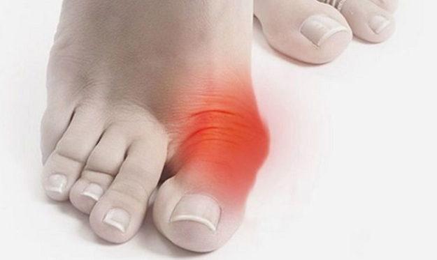 Сильно болит косточка у большого пальца ноги что делать thumbnail