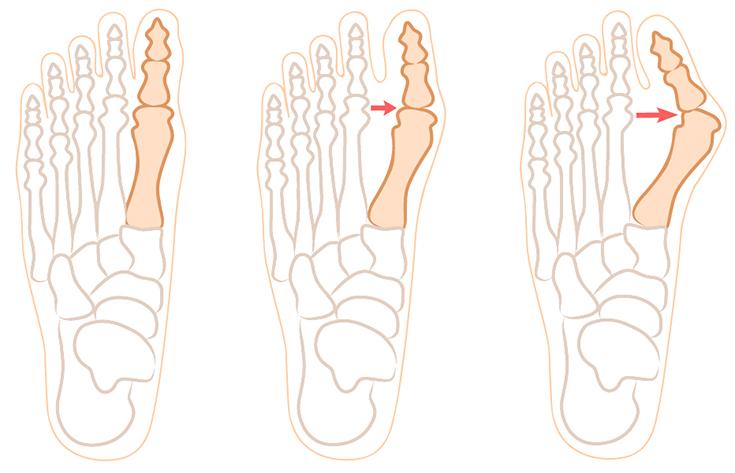 Косточка на ноге постоянно болит thumbnail