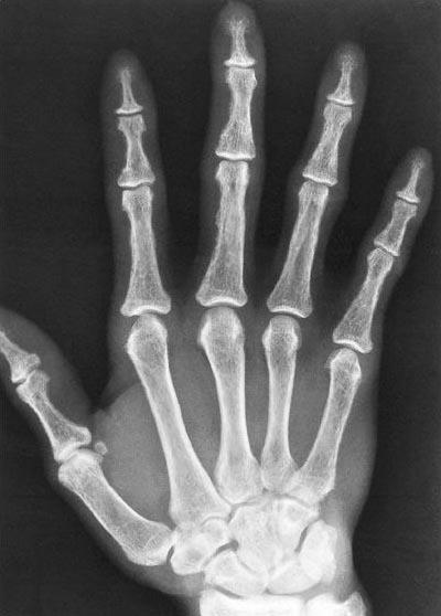 Рентген кисти