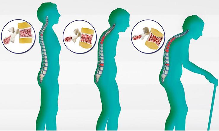 Степени остеопороза