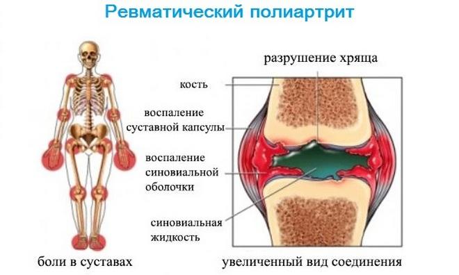 Ревматический полиартрит суставов